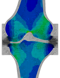 Slice through the knee showing the bone density distribution predicted by the model.